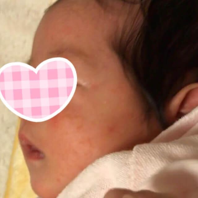 乳児湿疹でファムズベビーを使い始めたころ